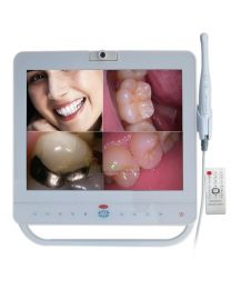 Dental Intraoral Camera System