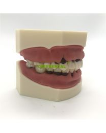 Peridontal Disease Model,Periodontal Jaw Model,28 Teeth,Soft Gum, Screw fixed, Without Articulator, Use For Scaling,Root Planting,Prophylactodontia,Hygienist Training And So On.