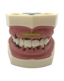 Dental Typodont Teeth Model Pathological Periodontal disease