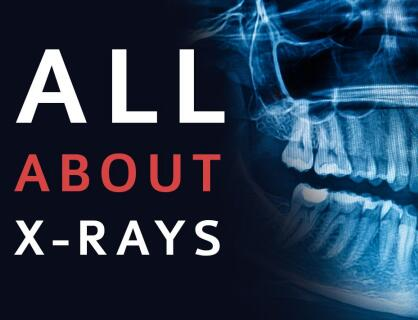 Dental X-Rays Fast and Easy Way to Help You Pinpoint Countless Oral Diseases